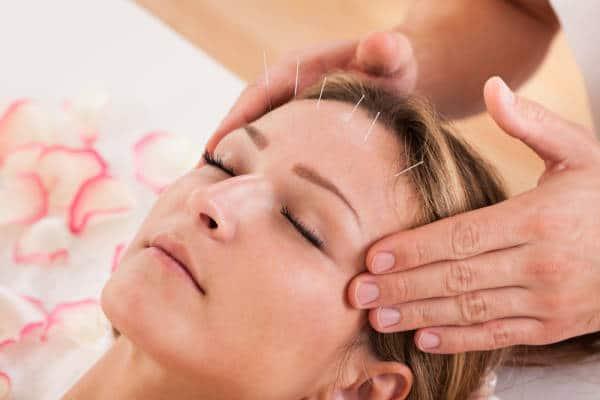 Akupunktur ist eine mehrere Jahrhundert alte Heilkunst.